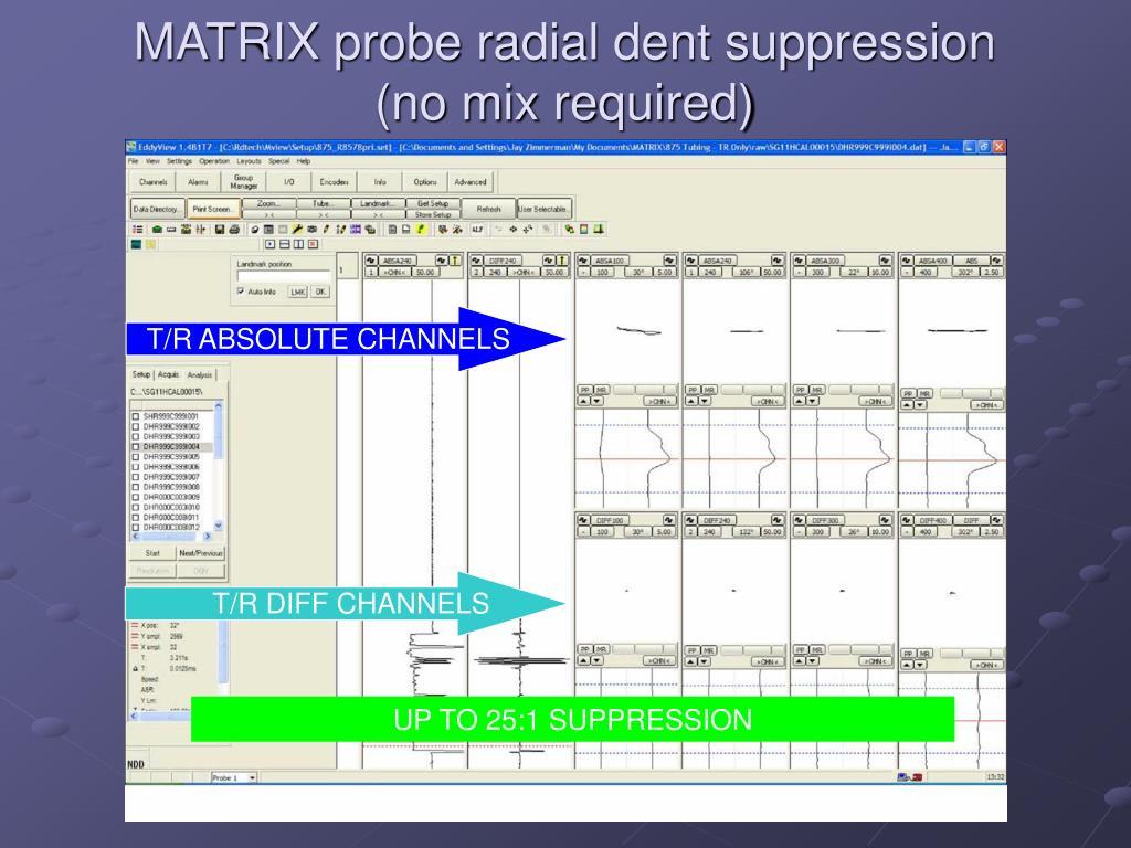MATRIX probe radial dent suppression