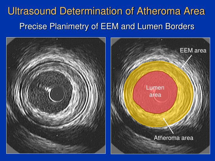 Ultrasound determination of atheroma area