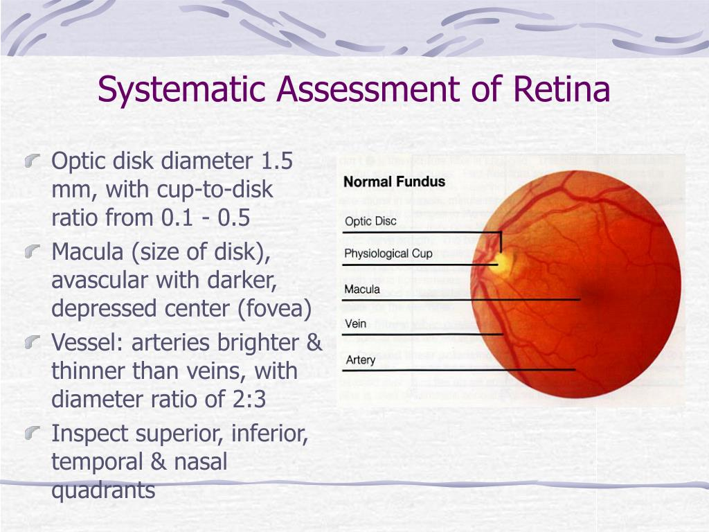Systematic Assessment of Retina