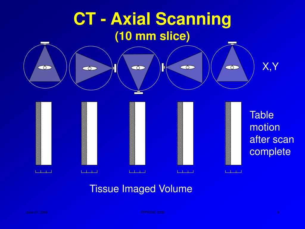CT - Axial Scanning