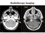 radiotherapy imaging