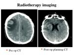 radiotherapy imaging16