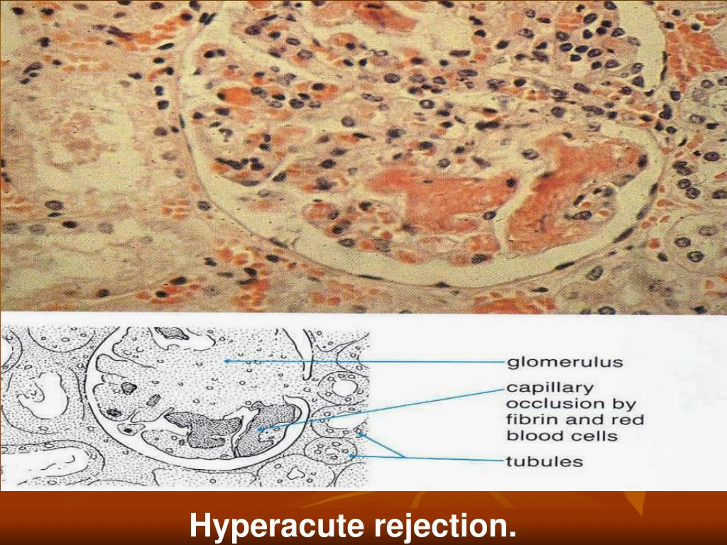 Hyperacute rejection.