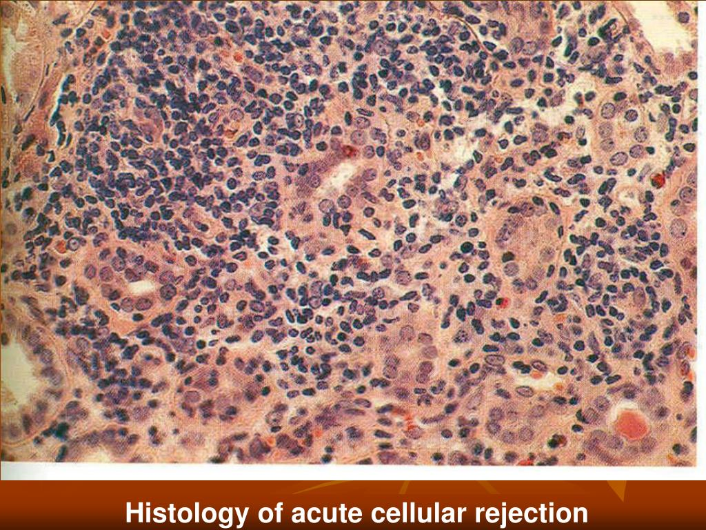 Histology of acute cellular rejection