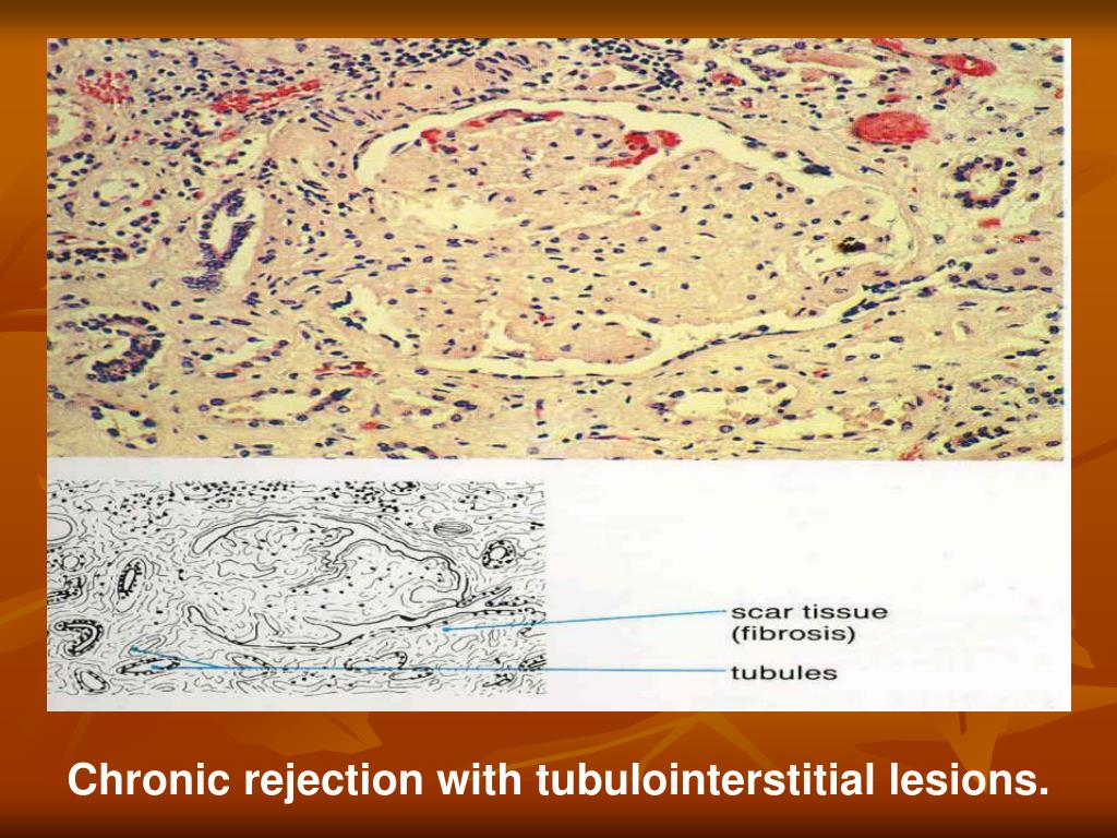 Chronic rejection with tubulointerstitial lesions.