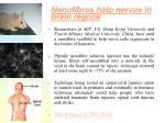 nanofibres help nerves in brain regrow