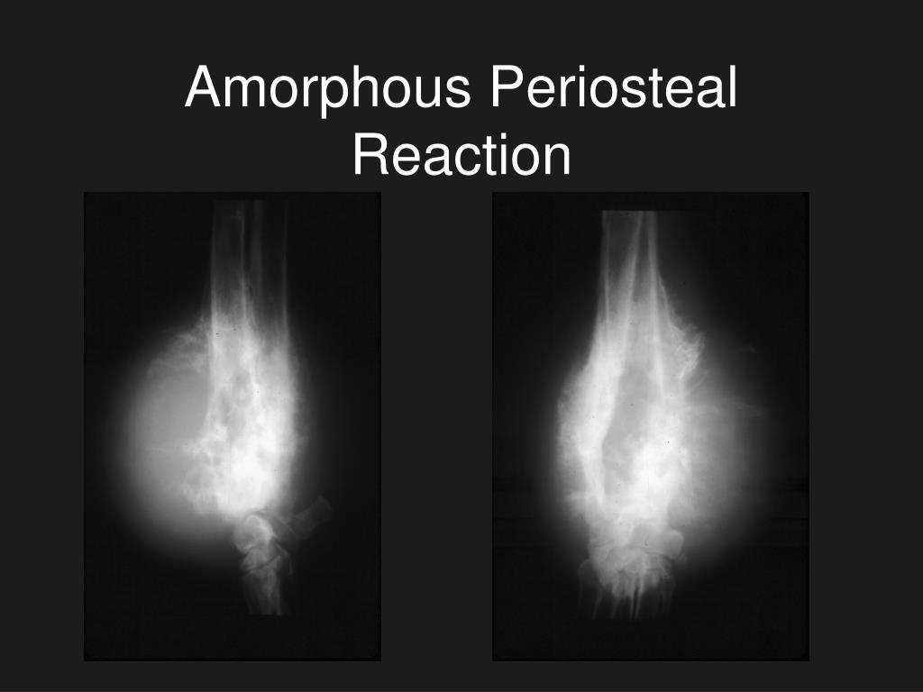 Amorphous Periosteal Reaction