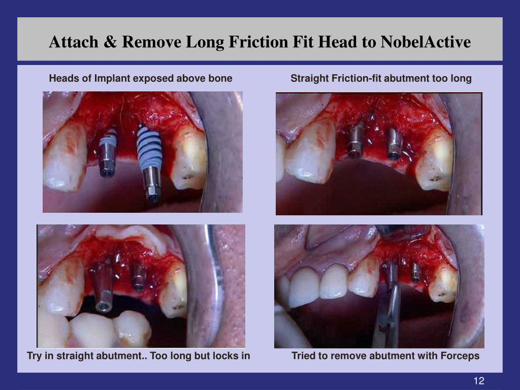 Attach & Remove Long Friction Fit Head to NobelActive