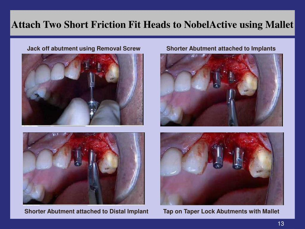Attach Two Short Friction Fit Heads to NobelActive using Mallet