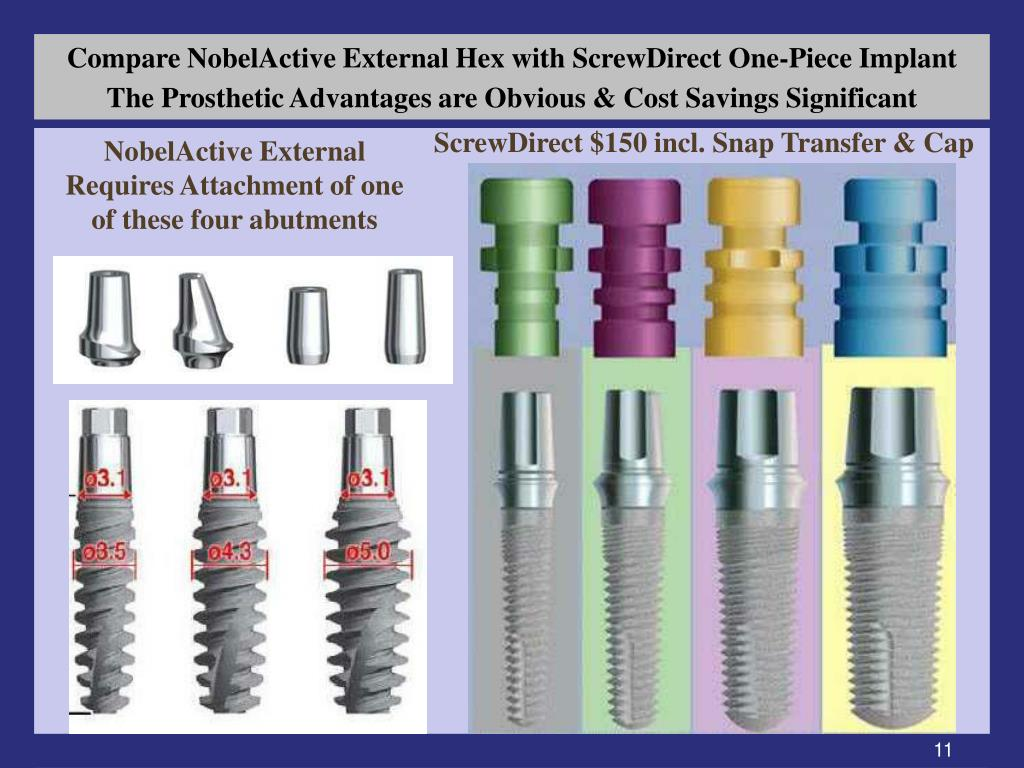 Compare NobelActive External Hex with ScrewDirect One-Piece Implant