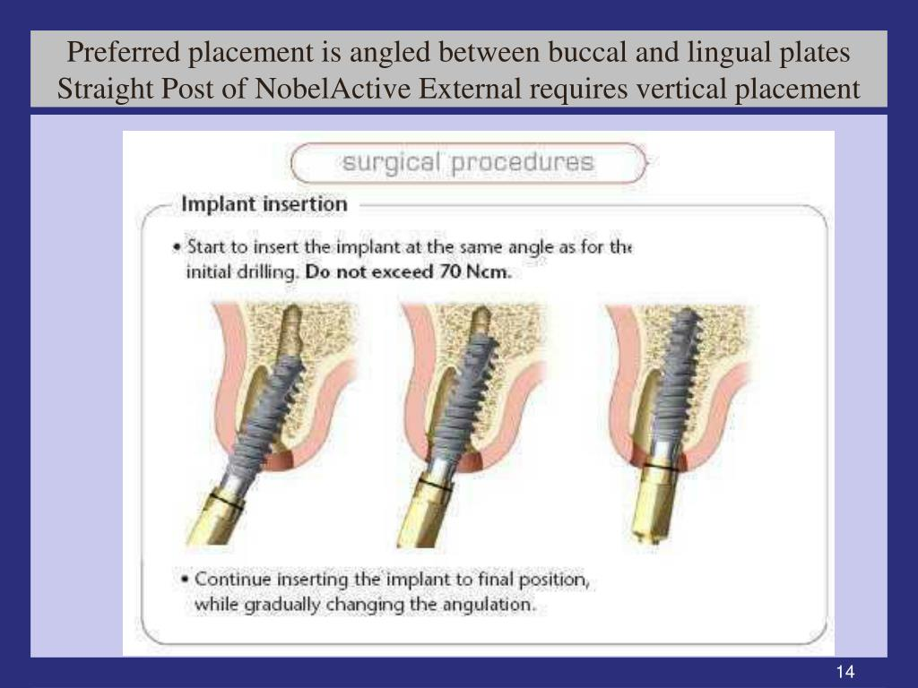 Preferred placement is angled between buccal and lingual plates