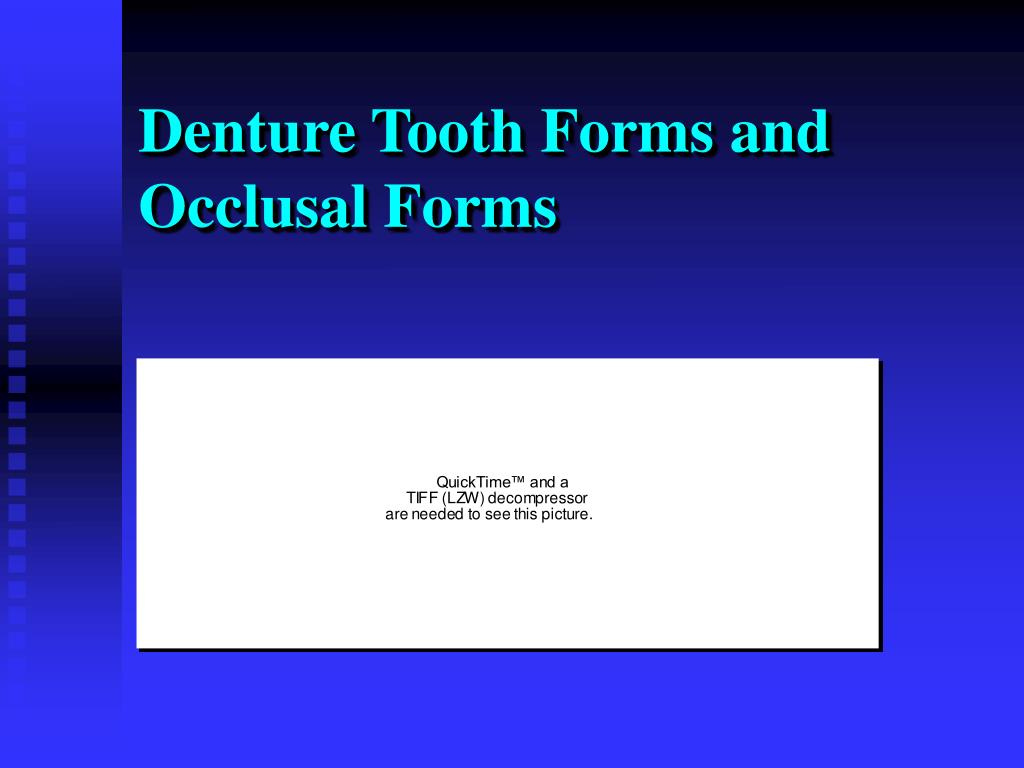 Denture Tooth Forms and Occlusal Forms