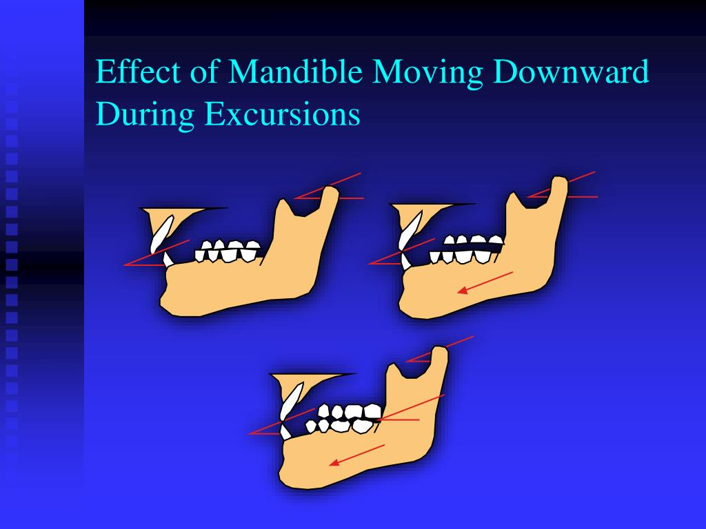 Effect of Mandible Moving Downward During Excursions