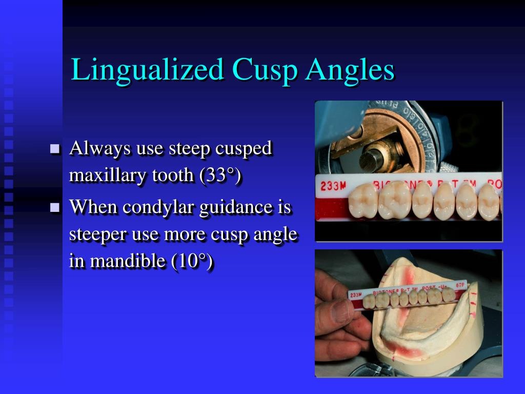 Lingualized Cusp Angles
