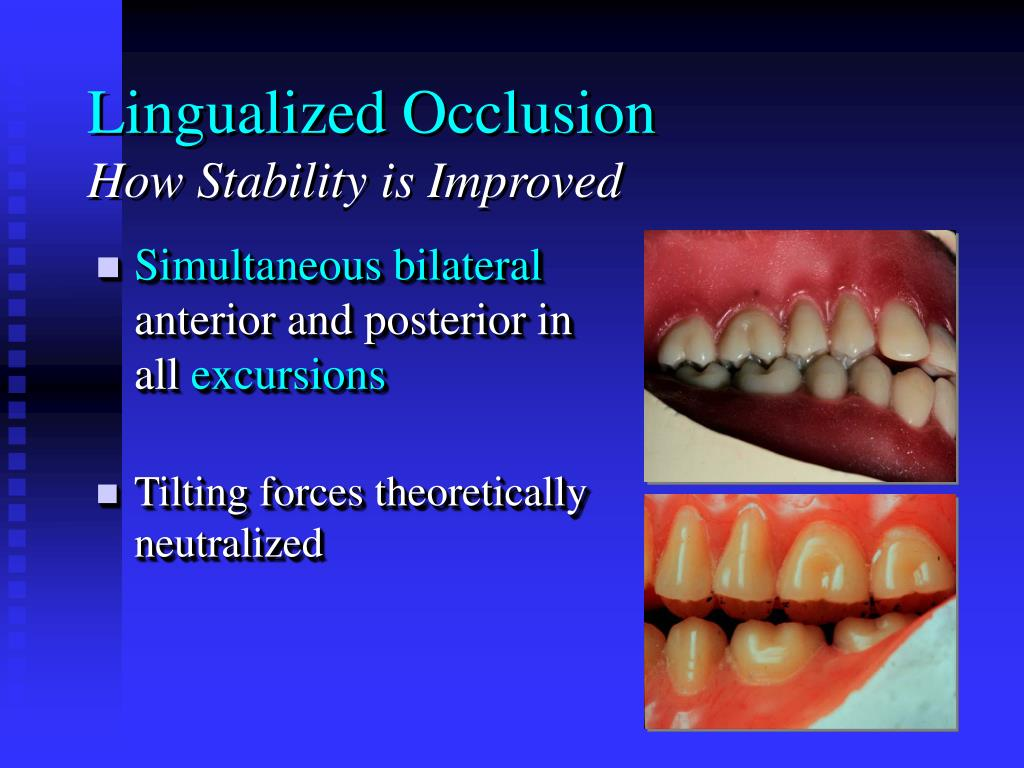 Lingualized Occlusion