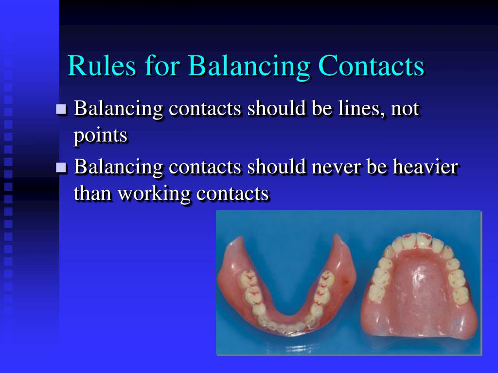 Rules for Balancing Contacts