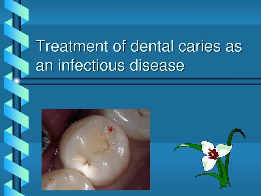 PPT - Treatment of dental caries as an infectious disease PowerPoint