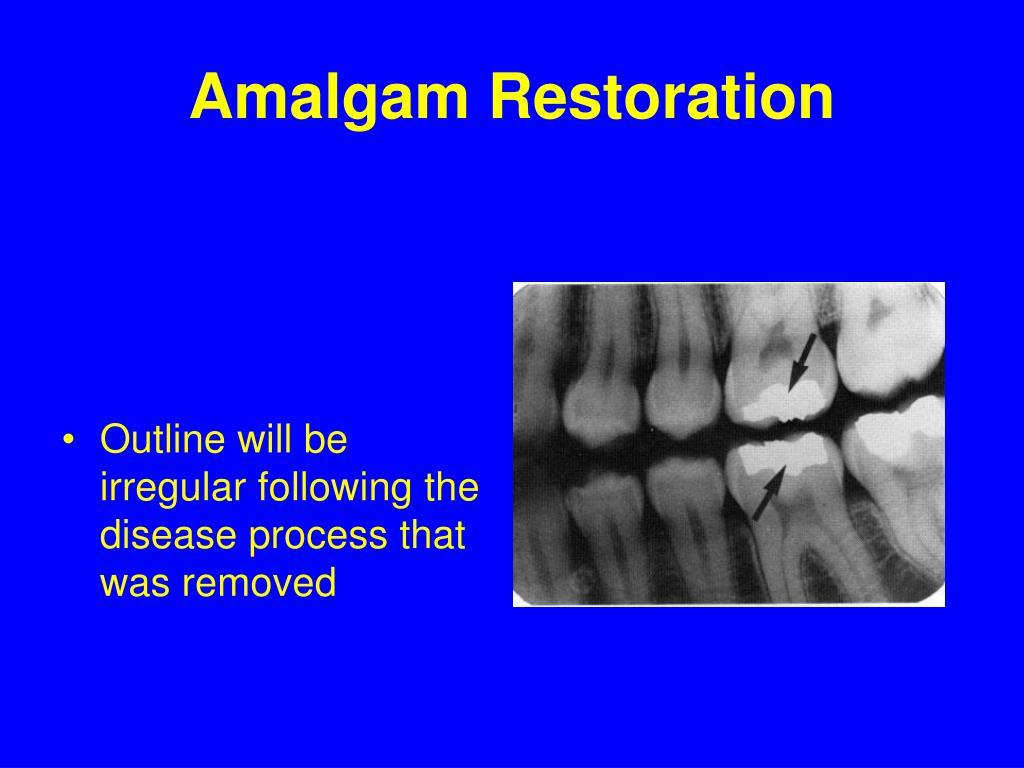 Amalgam Restoration