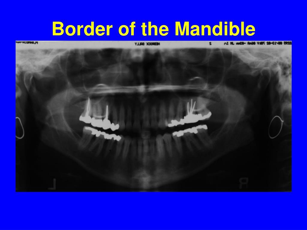 Border of the Mandible