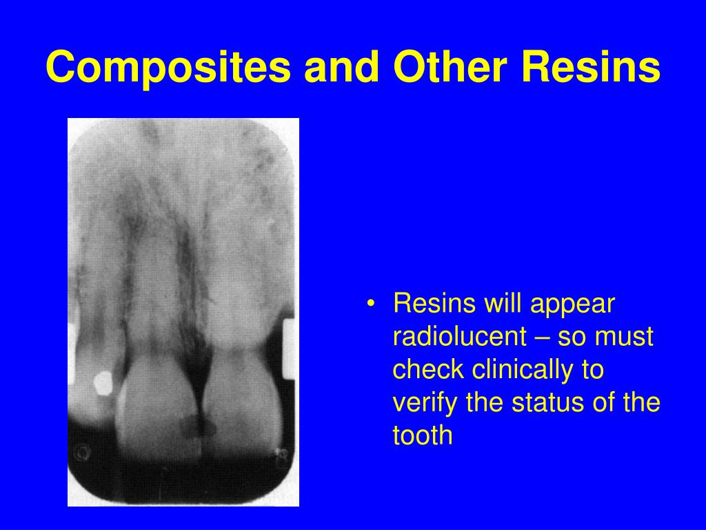 Composites and Other Resins
