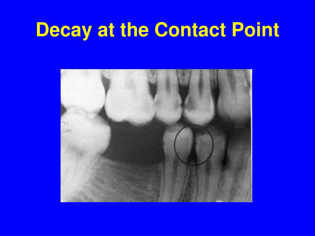 Decay at the Contact Point