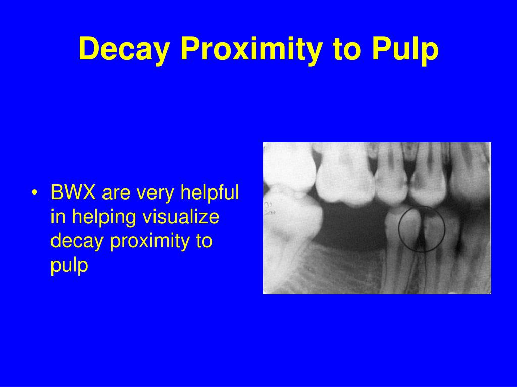 Decay Proximity to Pulp