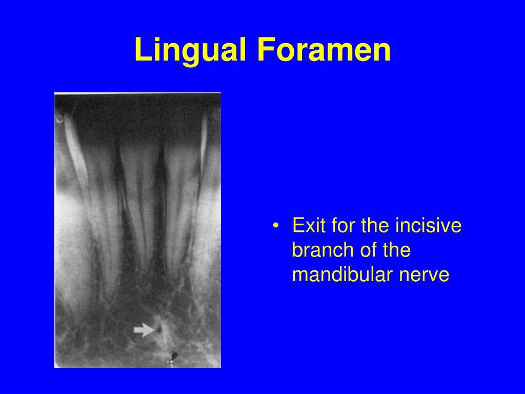 Lingual Foramen