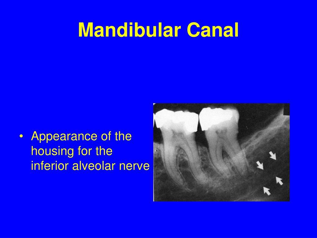 Mandibular Canal