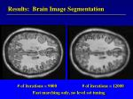 results brain image segmentation