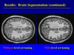 results brain segmentation continued