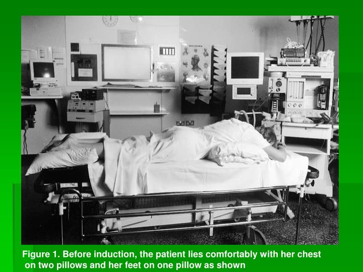 Figure 1. Before induction, the patient lies comfortably with her chest