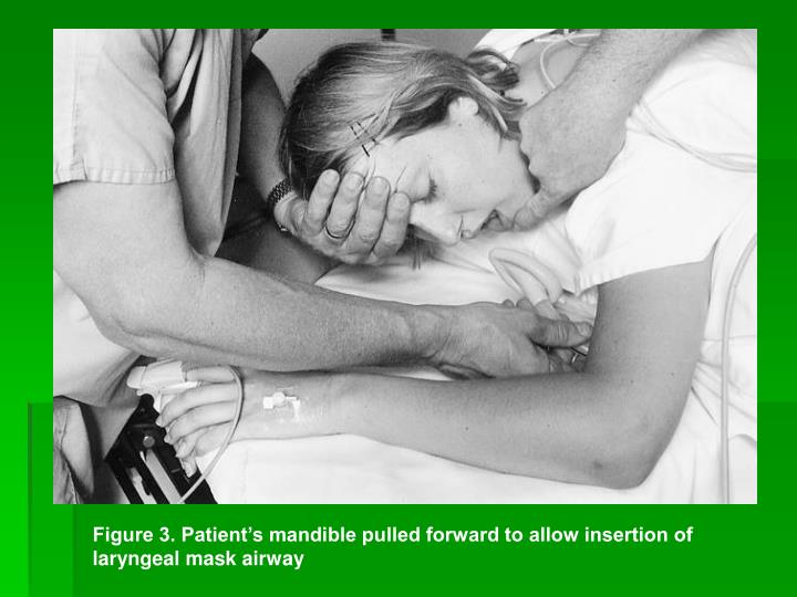 Figure 3. Patient's mandible pulled forward to allow insertion of