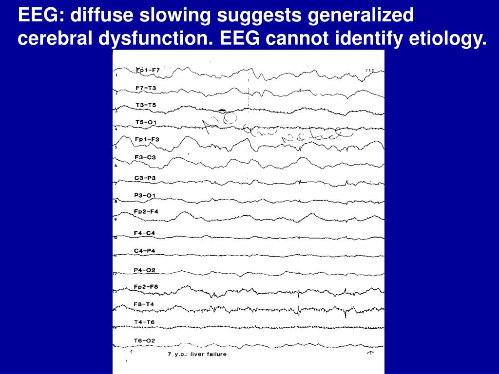 EEG: diffuse slowing suggests generalized cerebral dysfunction. EEG cannot identify etiology.
