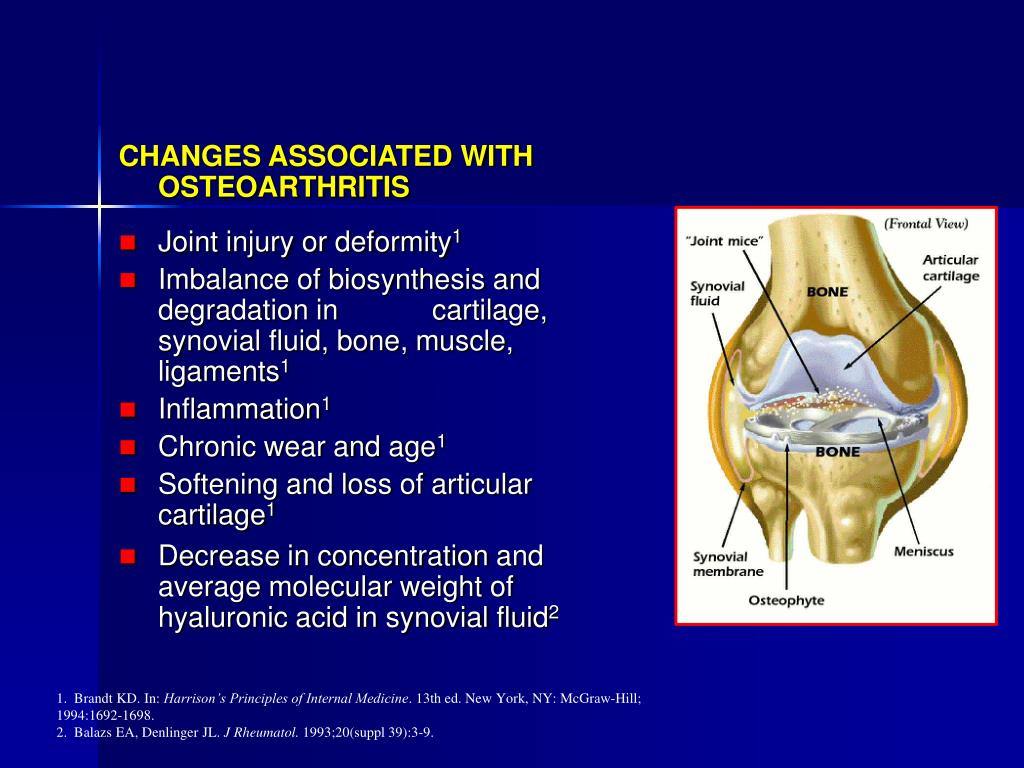 """""""A Failure of the Supporting Structure of the Total Organ (Joint)"""""""