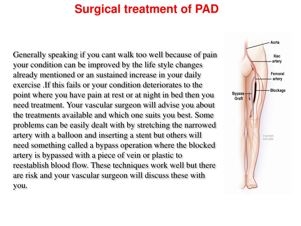 Surgical treatment of PAD