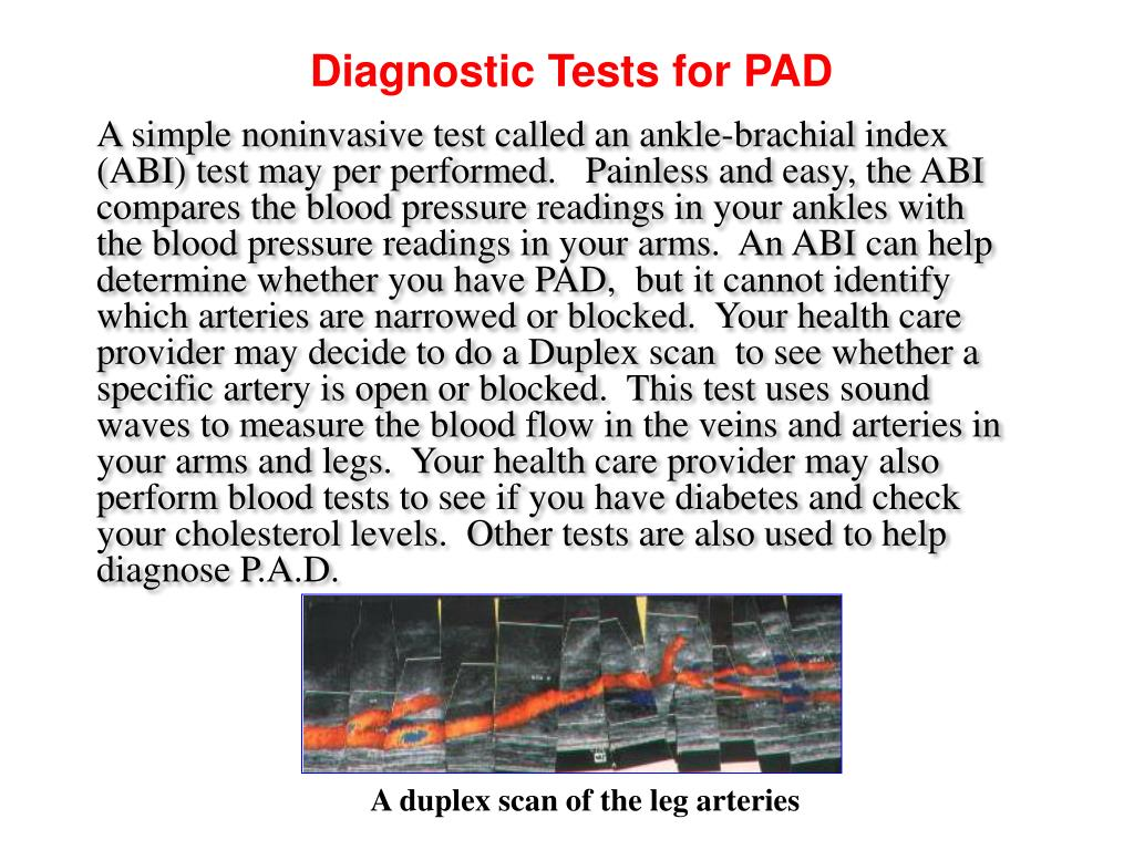 Diagnostic Tests for PAD