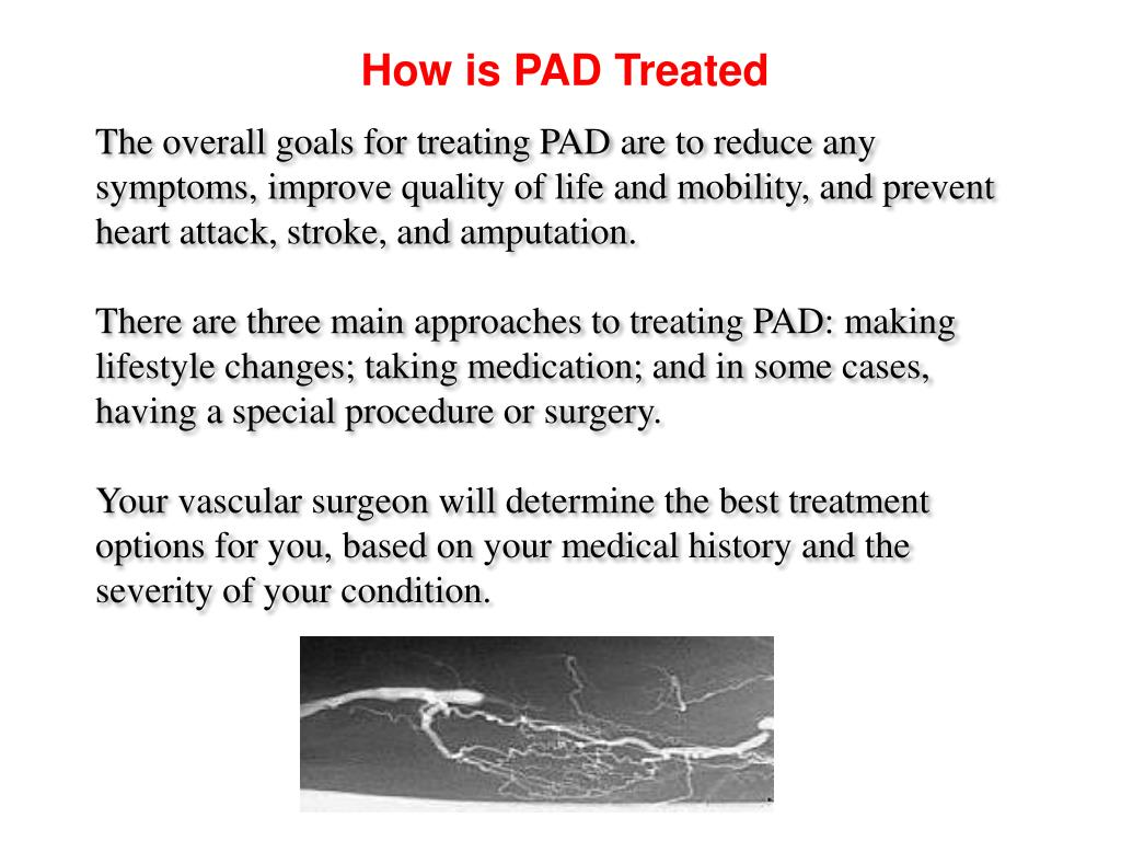 How is PAD Treated