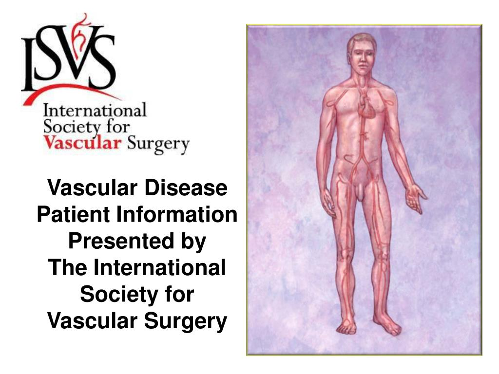 Vascular Disease Patient Information
