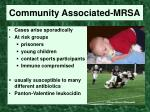 community associated mrsa