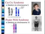 cat cry syndrome