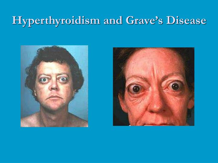 graves disease hyperthyroidism and treatments essay Grave' disease, an autoimmune disorder, is the most common cause of hyperthyroidism hyperthyroidism occurs when the thyroid makes too much t4, t3, or both diagnosis of overactive thyroid and treatment of the underlying cause can relieve symptoms and prevent complications.