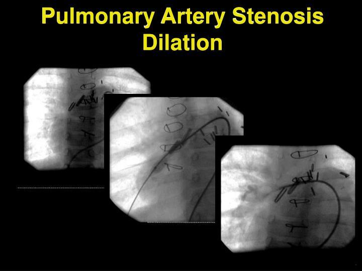 Ppt Pediatric Interventional Cardiac Catheterization