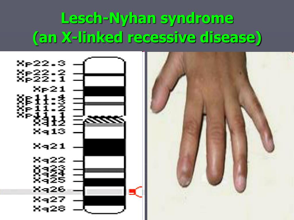 Lesch-Nyhan syndrome                  (an X-linked recessive disease)