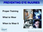 preventing eye injuries14