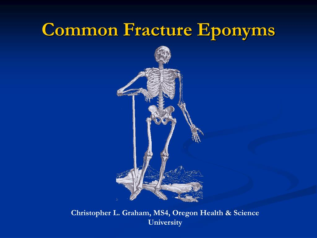 common fracture eponyms l.