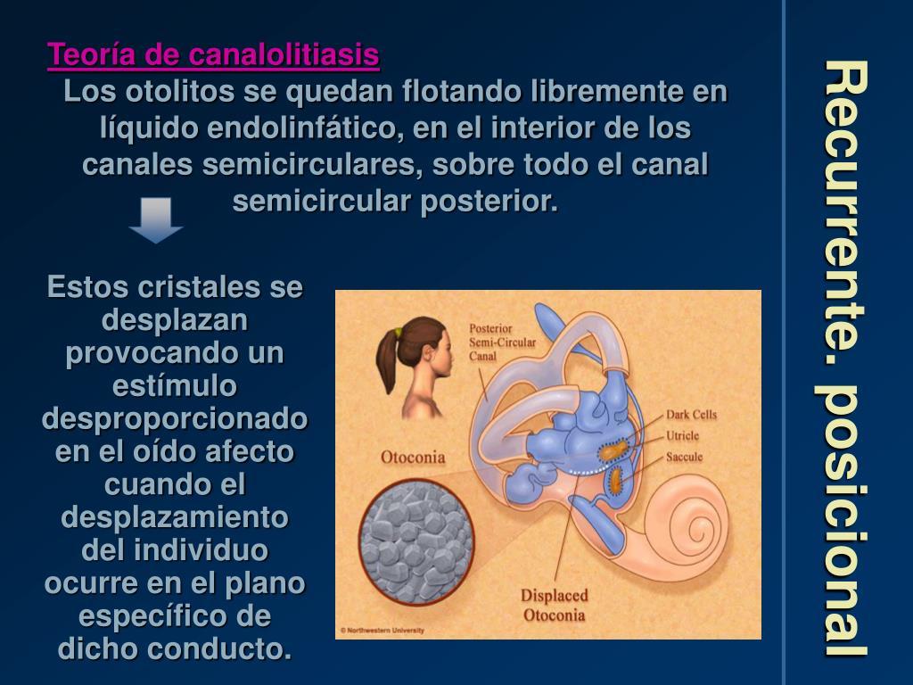 Teoría de canalolitiasis