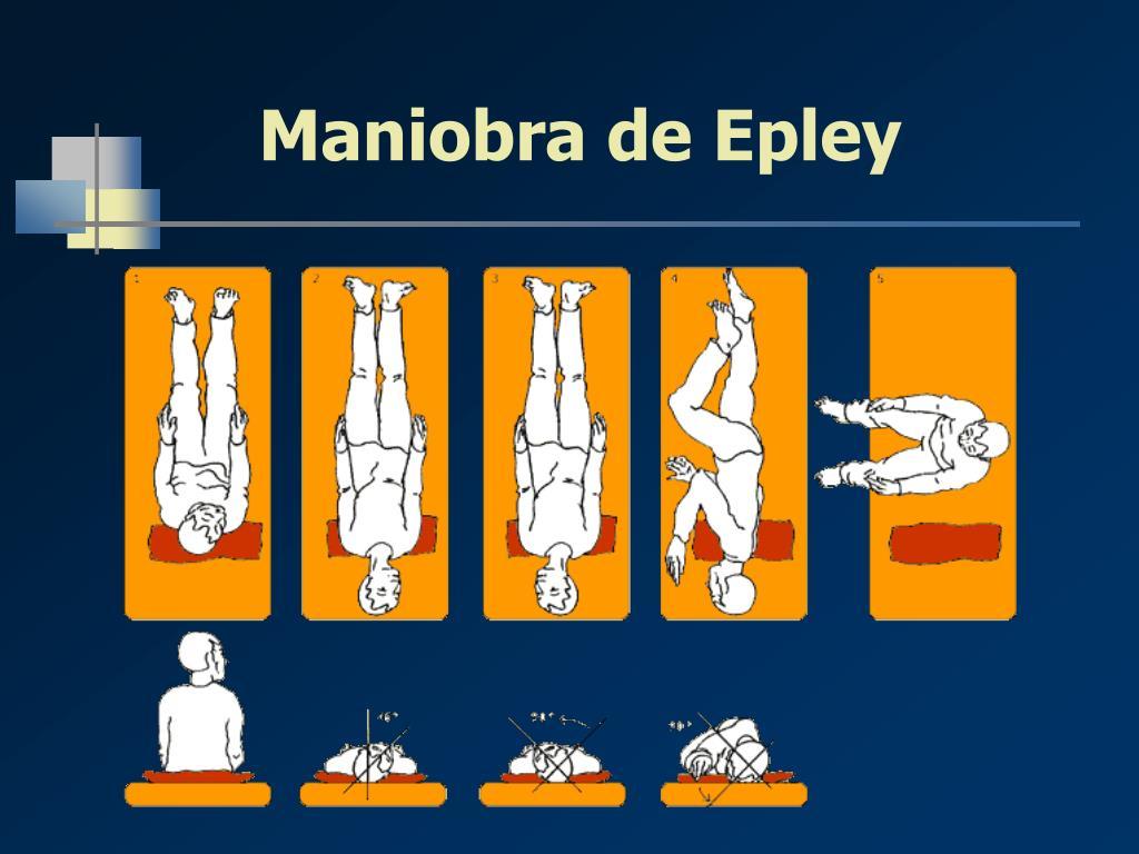 Maniobra de Epley
