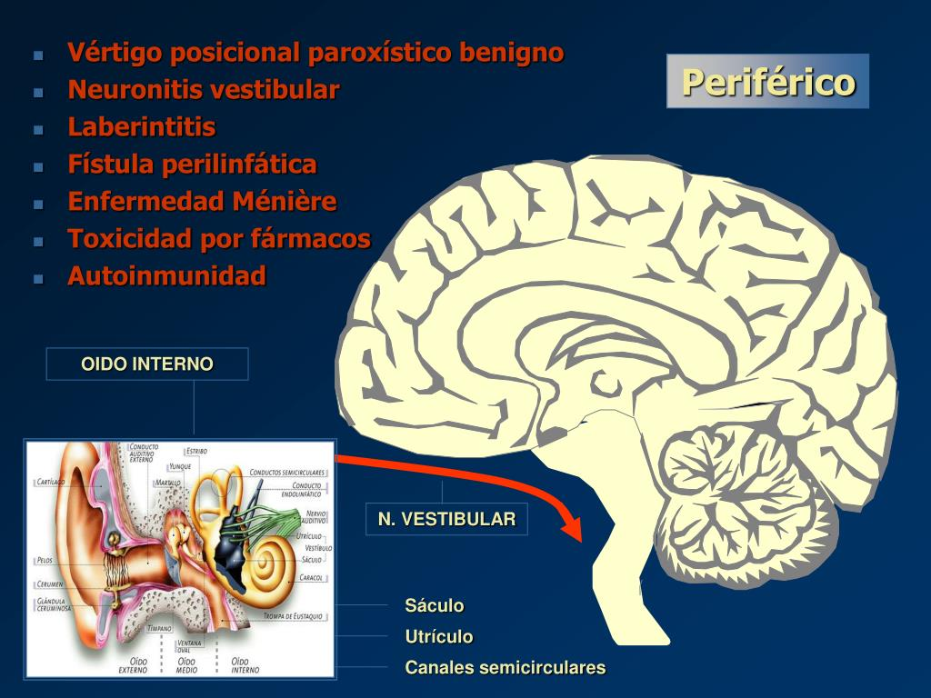 Vértigo posicional paroxístico benigno