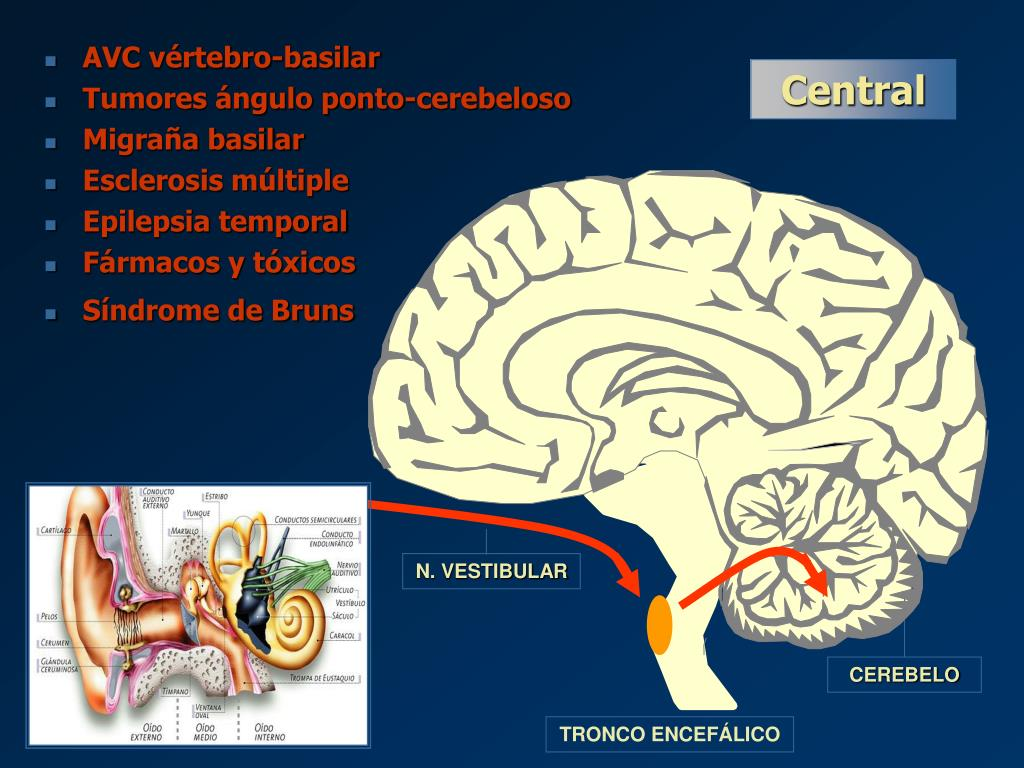 AVC vértebro-basilar