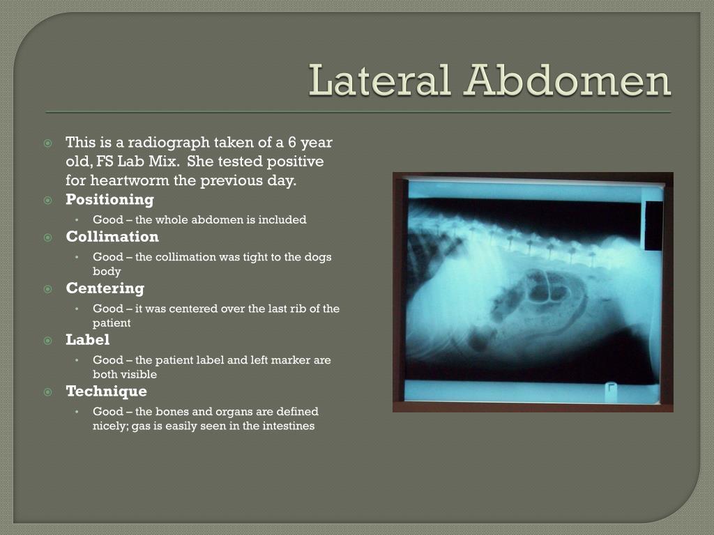 Lateral Abdomen